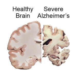What is Alzheimer's Disease - Alzheimer's Orange County